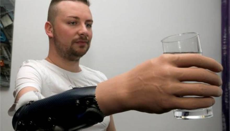 20934192_Austria_Bionic_Hands_JPEG_08195.limghandler