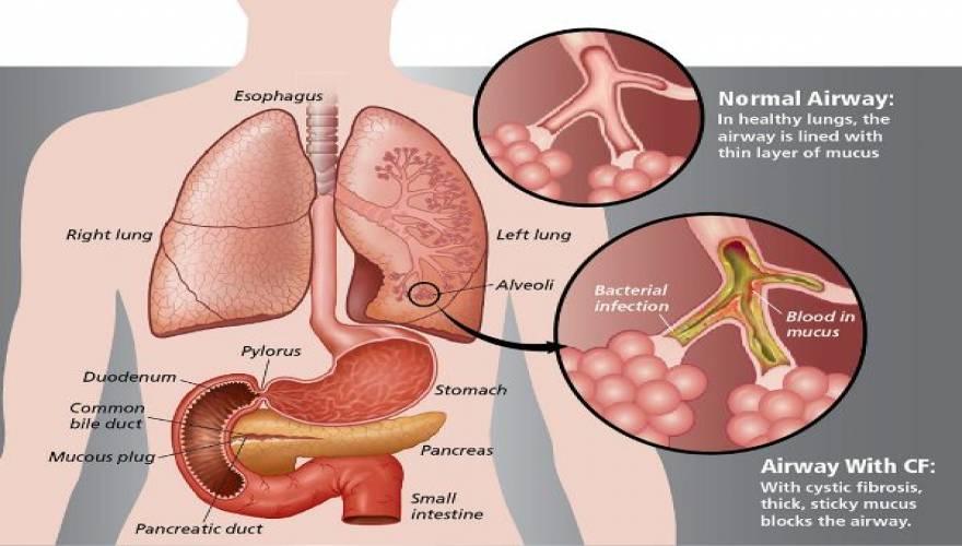 Cystic_Fibrosis