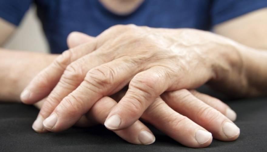 arthritida_1