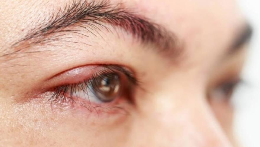 Πως να αντιμετωπίσετε στο σπίτι το κριθαράκι στο μάτι