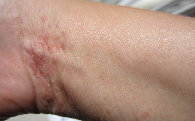 scabies-on-wrist.medium