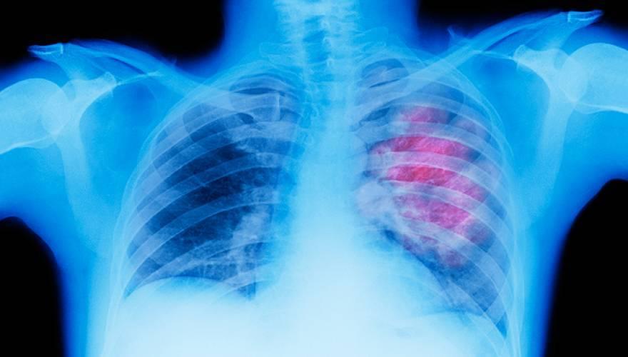 pneumonas_2