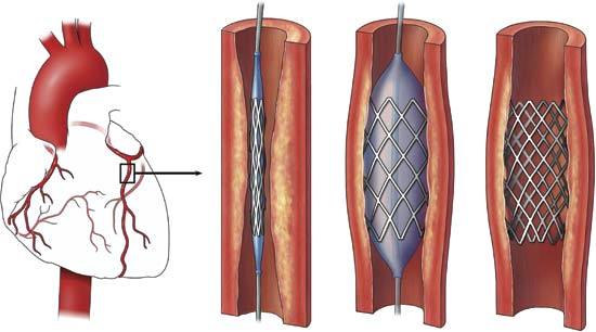 stents1