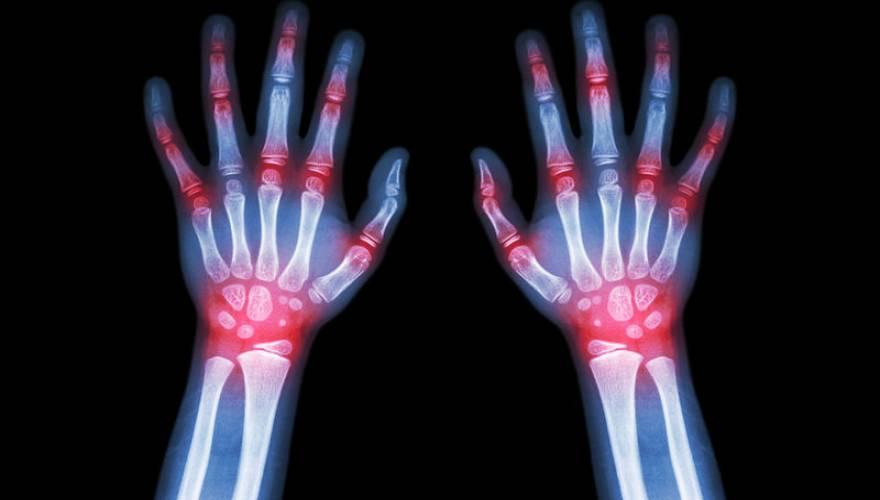Rheumatoid-Arthritis--Gout-Ar-1037554281