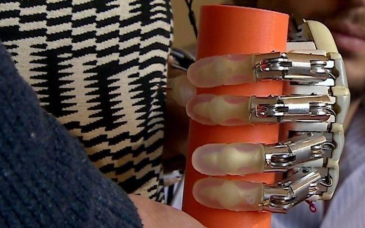 Δημιουργήθηκε το πρώτο βιονικό χέρι με αίσθηση αφής