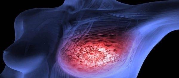 ο επιζών του καρκίνου που χρονολογείται στο διαδίκτυο