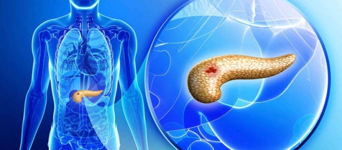 """Έρευνα: Βρήκαν την """"Αχίλλειο πτέρνα"""" του καρκίνου του παγκρέατος – Είναι 4 ασθένειες μαζί"""