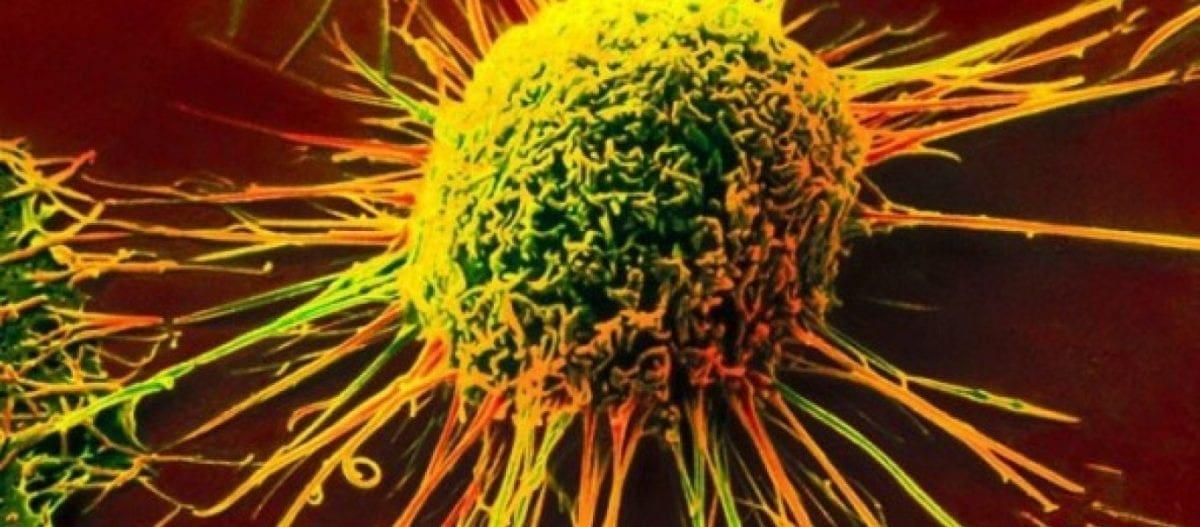 Κι όμως, ο καρκίνος μπορεί να αποφευχθεί!- Τι ανακάλυψαν οι επιστήμονες