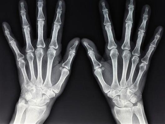 Για μια ακτινογραφία ήρθε ασθενής απο τη Σύμη στη Ρόδο