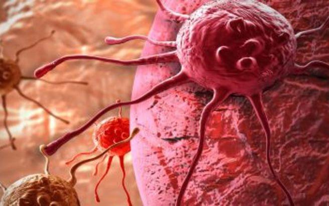 Νέα μελέτη συνδέει τον καρκίνο με τα κιλά