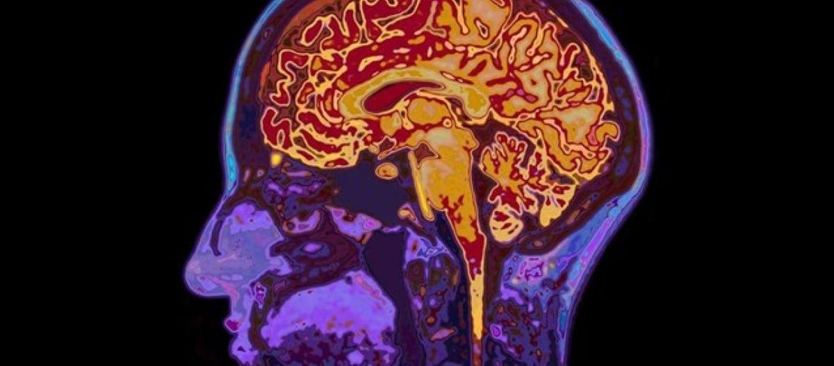 Η μη φυσιολογική ανάπτυξη του προμετωπιαίου φλοιού συνδέεται με ψυχικές ασθένειες- Τι δείχνει νέα έρευνα