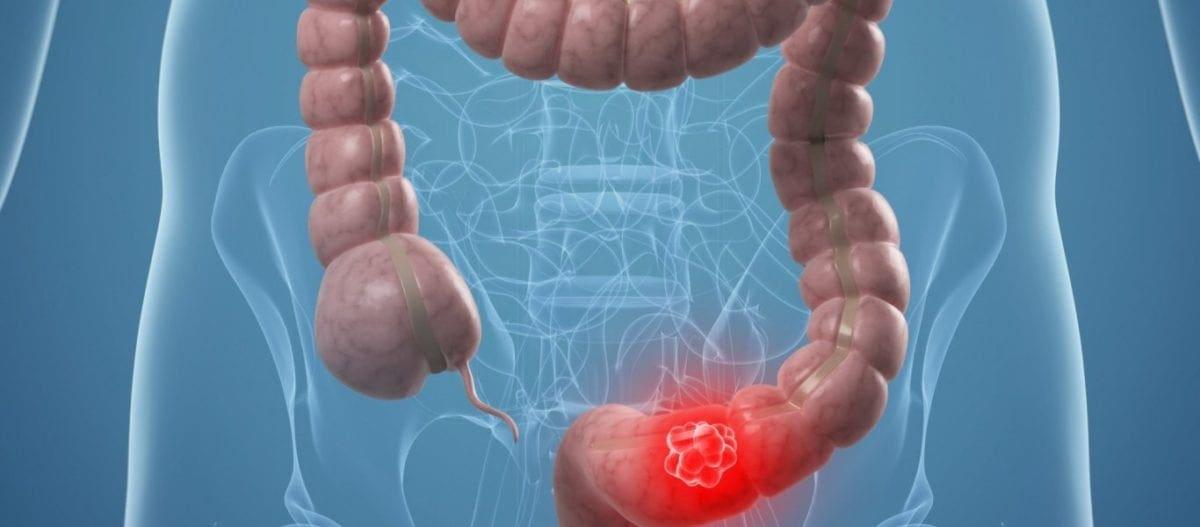 Ποιες τροφές φέρνουν τα πάνω-κάτω στο έντερο και την υγεία