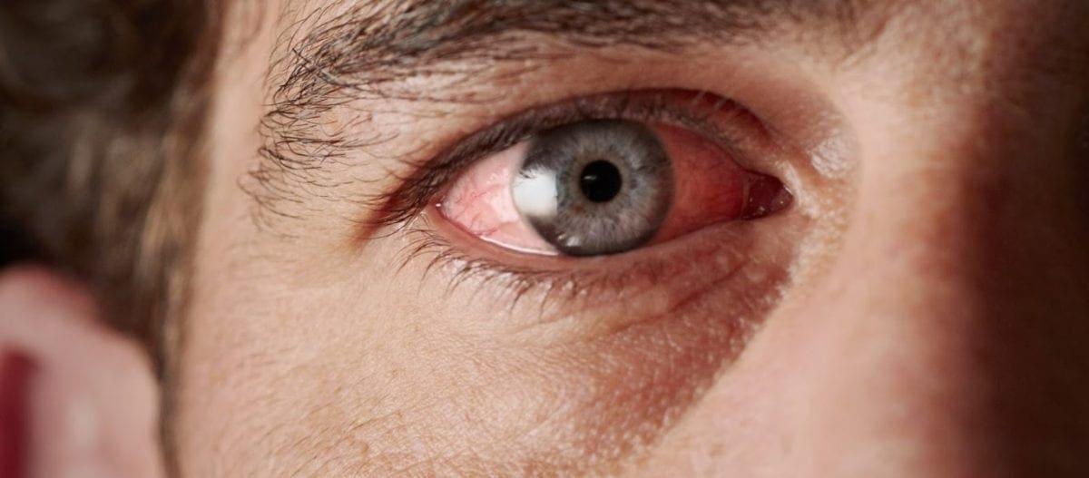Αυτό το σημάδι στα μάτια μπορεί να είναι πρώιμο σύμπτωμα για… Αλτσχάιμερ