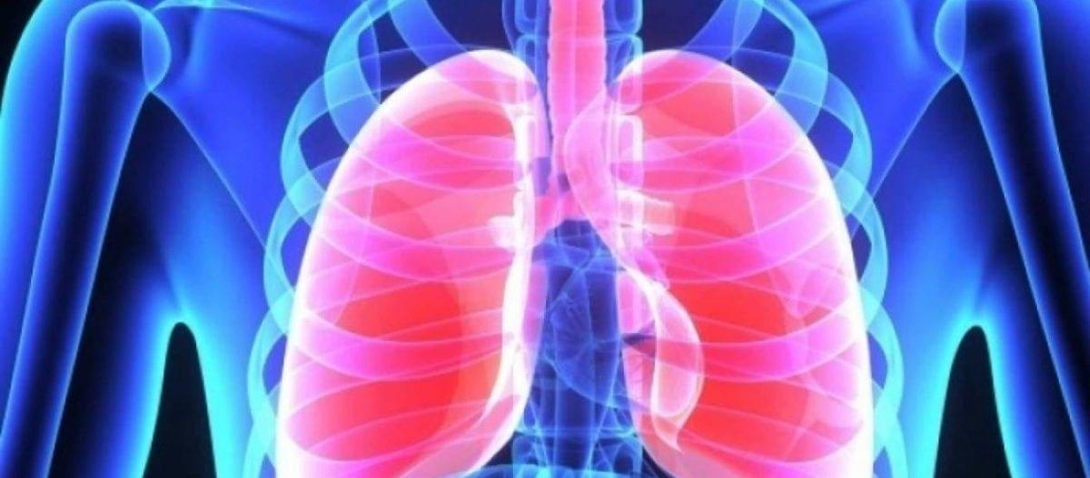 Κίνδυνος πνευμονικής θρομβοεμβολής από φάρμακο για την αρθρίτιδα – Το απαγόρευσε ο Ευρωπαϊκός Οργανισμός Φαρμάκων