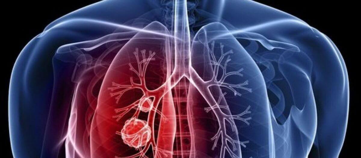 Αυτή είναι η φυτική ουσία που μπορεί να καταστρέψει το 90% των κυττάρων του καρκίνου του πνεύμονα