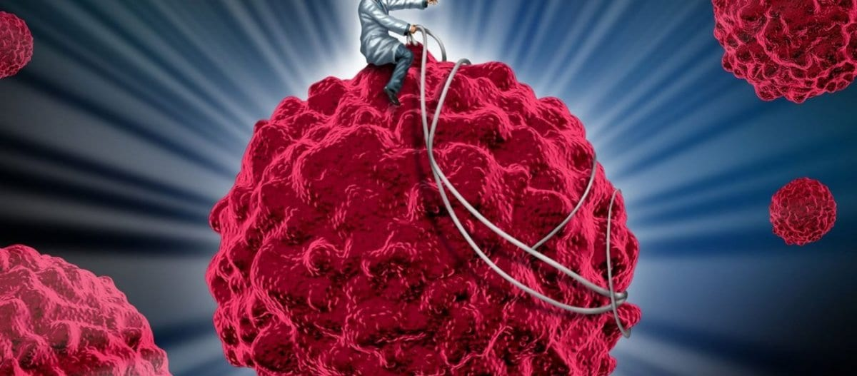 Οι καρκινοπαθείς που αποφεύγουν τη ζάχαρη έχουν πάνω από το διπλάσιο ποσοστό επιβίωσης (90%)