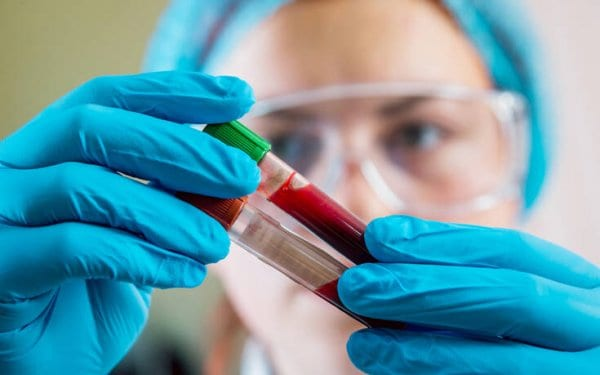Τεστ αίματος ανιχνεύει με τη βοήθεια της τεχνητής νοημοσύνης πάνω από 50 είδη καρκίνου