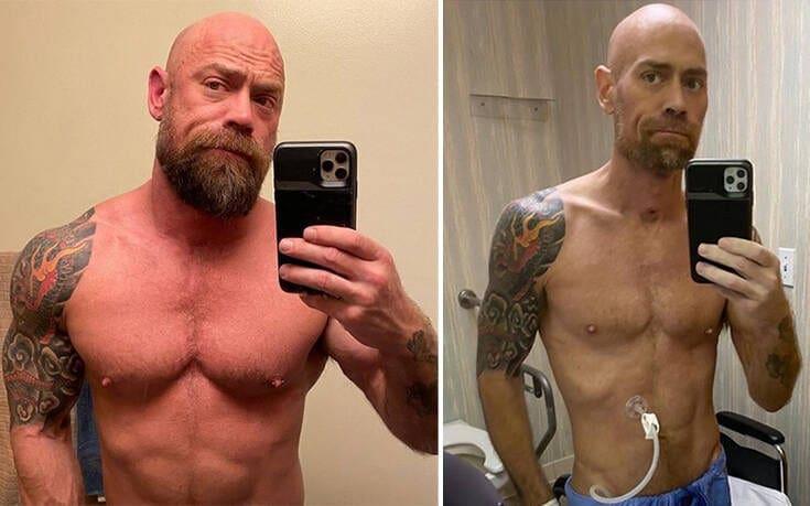 Νόσησε βαριά με κορονοϊό και έδειξε με μια φωτογραφία τη μεγάλη αλλαγή στο σώμα του